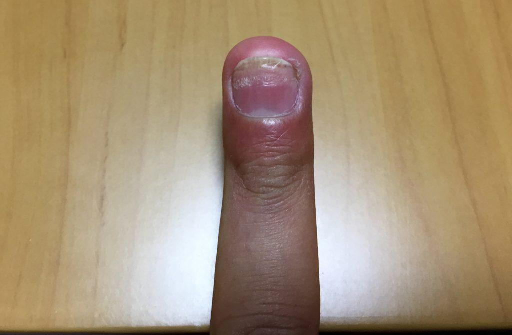 爪が根元から剥がれた